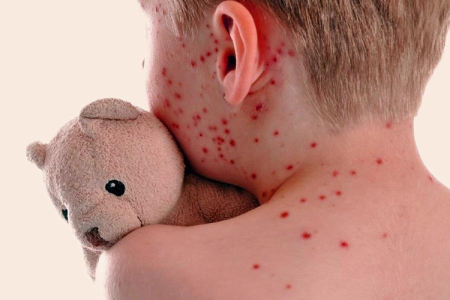 malattie-esantematiche